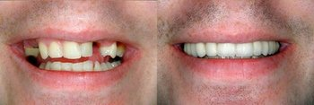 Smile Gallery - Smile Town Dental, Addison Dentist