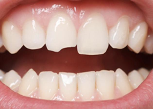 Cosmetic Bonding  - Smile Town Dental, Addison Dentist