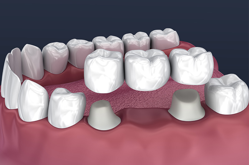 Crowns and Bridges, Inlays and Onlays  - Smile Town Dental, Addison Dentist