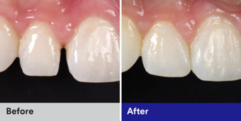 BioClear Diastema Closure and Black Triangle Closure  - Smile Town Dental, Addison Dentist
