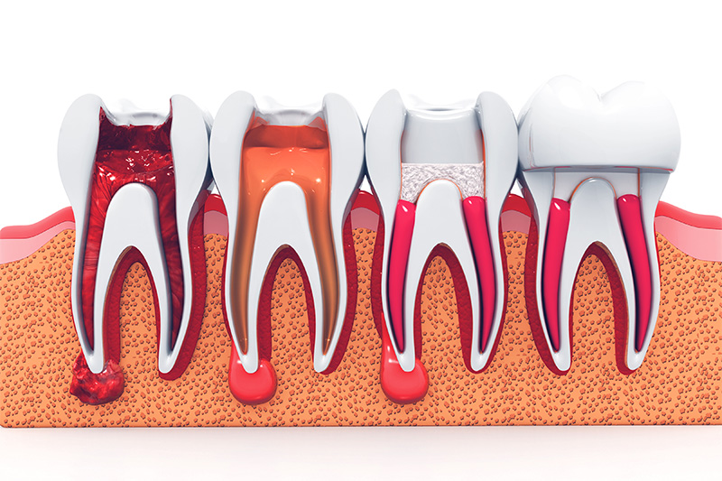 Root Canal Therapy  - Smile Town Dental, Addison Dentist