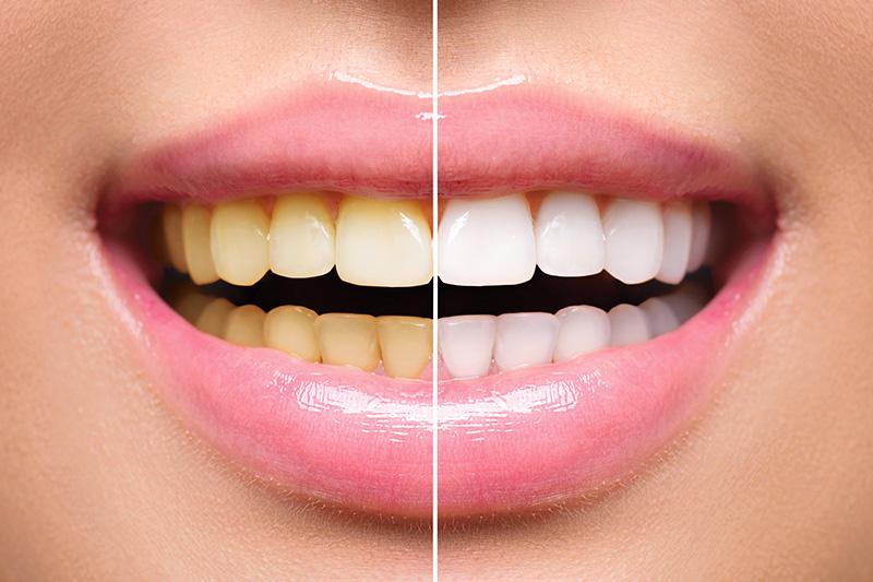 Teeth Whitening - Smile Town Dental, Addison Dentist