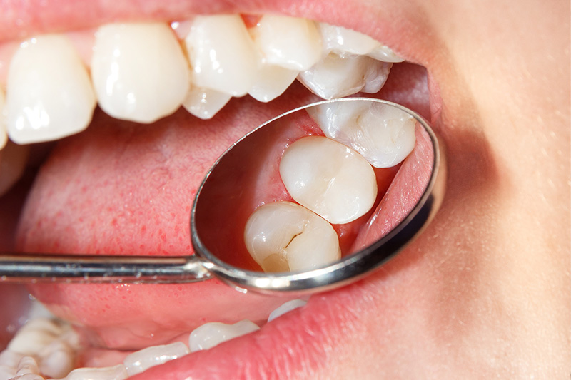 Tooth Colored Composite Fillings  - Smile Town Dental, Addison Dentist