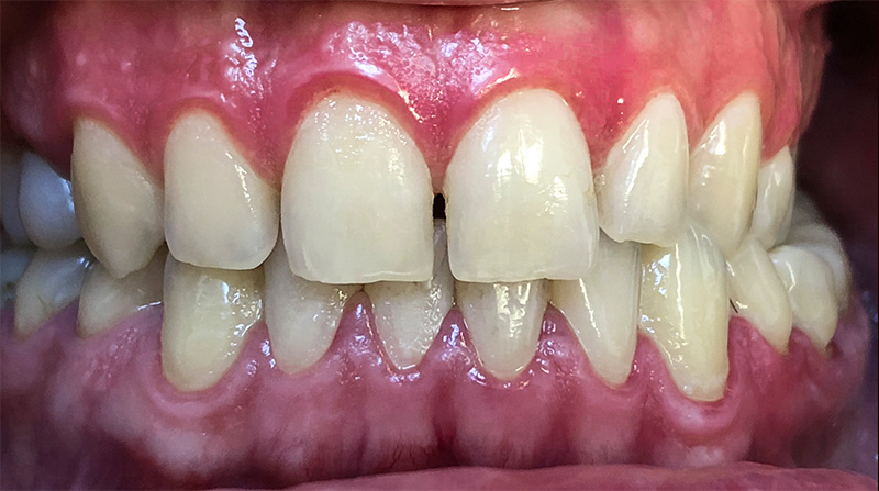 Veneers  - Smile Town Dental, Addison Dentist