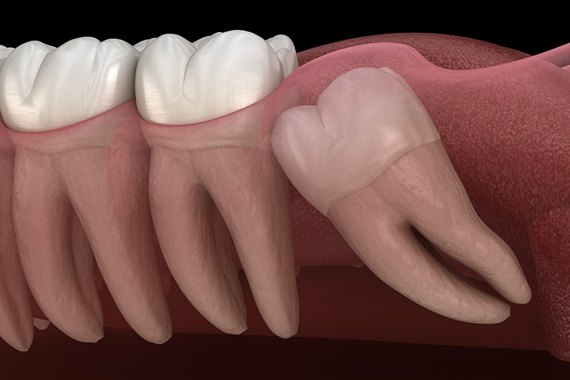 Wisdom Teeth Extractions (with Sedation)  - Smile Town Dental, Addison Dentist